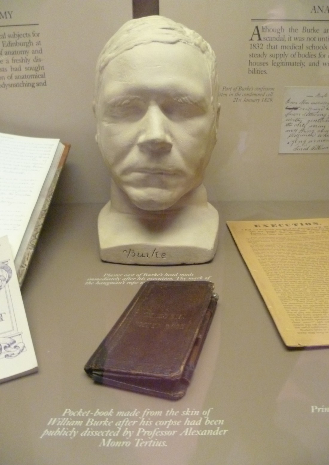 william_burkes_death_mask_and_pocket_book_surgeons_hall_museum_edinburgh